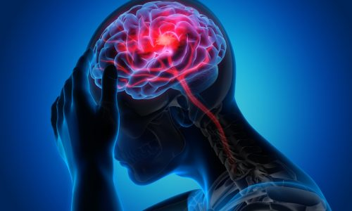 Medical illustration of a brain with stroke symptoms